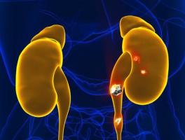 有什么好的办法可以排出体内的肾结石?专业答案来了